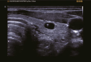 Thyroid colloid cyst with DMR plus™
