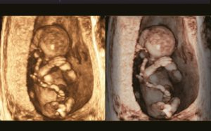 Early Fetus 3D with VSI™