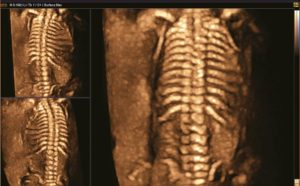 Fetal spine with HDVI™