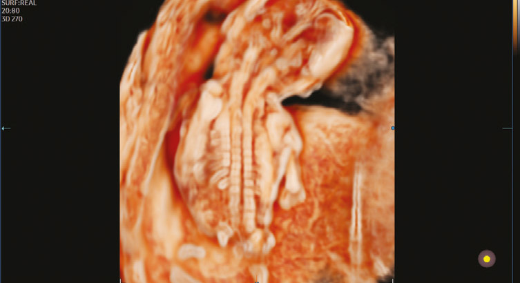 Fetal spine with CrystalVue™